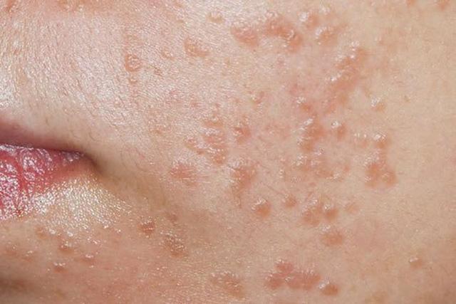 Bé gái 7 tuổi bị nhiễm virus HPV, cảnh báo về thói quen dùng chung đồ vật trong nhà - Ảnh 1.