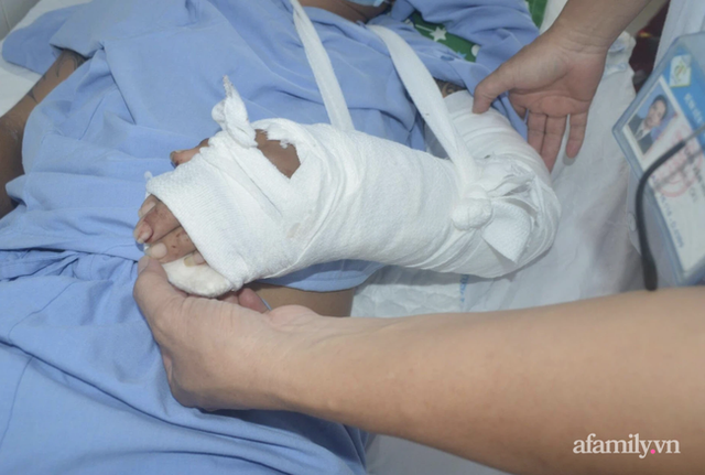 Bác sĩ cầm bàn tay trái đứt lìa vào phòng mổ, nối lại cho người đàn ông 32 tuổi - Ảnh 3.