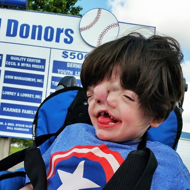 Bé trai sinh ra với 2 khuôn mặt dính liền nhau, bác sĩ khẳng định khó sống sót nhưng diện mạo và cuộc sống sau 17 năm gây kinh ngạc - Ảnh 3.