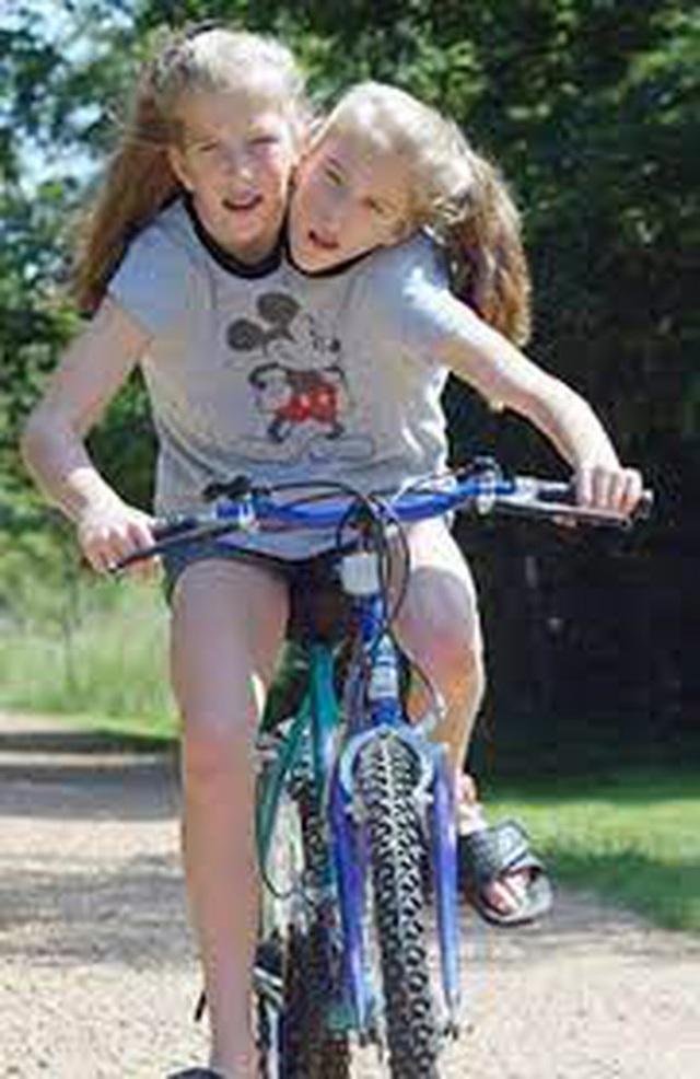 Bị chẩn đoán khó sống sót, cặp chị em sinh đôi dính liền chỉ có 2 chân khiến thế giới kinh ngạc với cuộc sống và diện mạo sau hơn 30 năm - Ảnh 4.