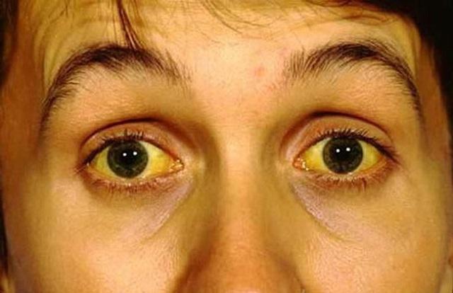 3 biểu hiện bất thường trên khuôn mặt cho thấy bạn đang có nguy cơ mắc ung thư gan - Ảnh 1.