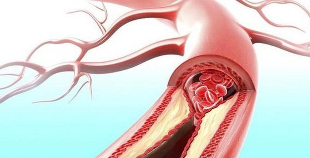 Huyết khối là kẻ giết người thầm lặng, 99% không có dấu hiệu báo trước, bác sĩ nhấn mạnh ghi nhớ 1 điều thì tránh được nguy cơ mất mạng - Ảnh 1.
