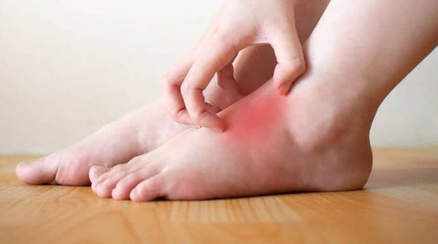 Không phân biệt nam nữ, có 2 thay đổi ở bàn chân là dấu hiệu của bệnh tiểu đường cần đi khám ngay - Ảnh 1.