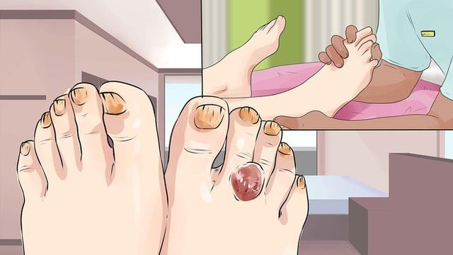 Không phân biệt nam nữ, có 2 thay đổi ở bàn chân là dấu hiệu của bệnh tiểu đường cần đi khám ngay - Ảnh 2.