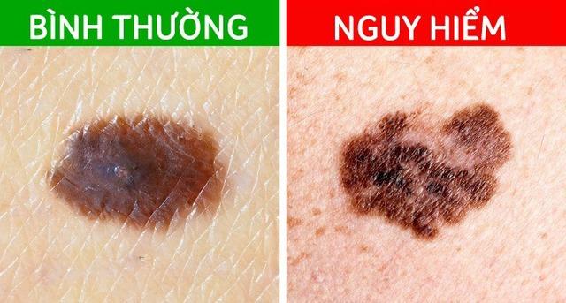 3 biểu hiện bất thường trên da tuyệt đối không được bỏ qua: Đốm và nốt ruồi tưởng như rất bình thường lại có thể là mầm mống của u ác tính - Ảnh 1.