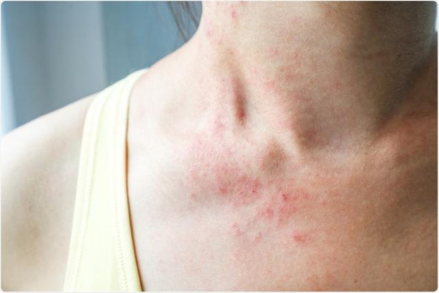 3 biểu hiện bất thường trên da tuyệt đối không được bỏ qua: Đốm và nốt ruồi tưởng như rất bình thường lại có thể là mầm mống của u ác tính - Ảnh 2.