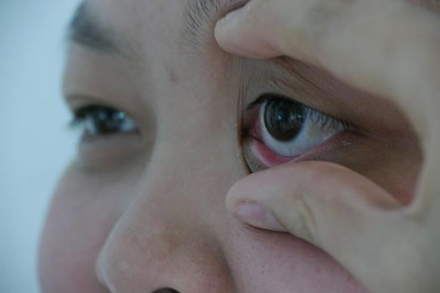 3 biểu hiện bất thường ở đôi mắt ngầm cảnh báo nguy cơ mắc bệnh tiểu đường rất cao mà bạn cần chú ý - Ảnh 2.