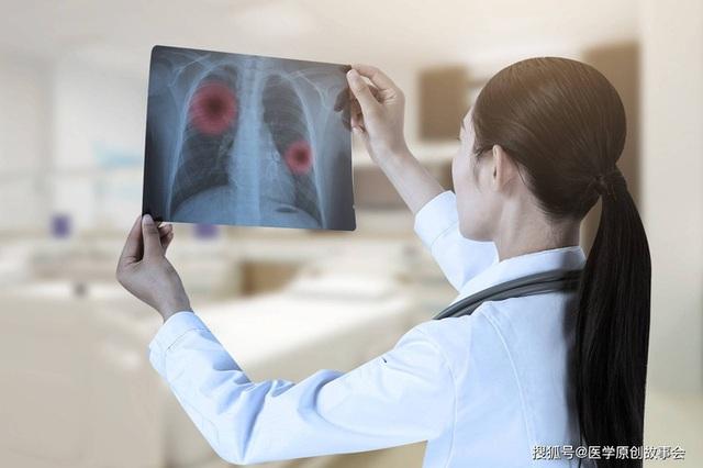 Bác sĩ trưởng khoa ung bướu tiết lộ những người miễn dịch ung thư thường có 7 đặc điểm này - Ảnh 2.