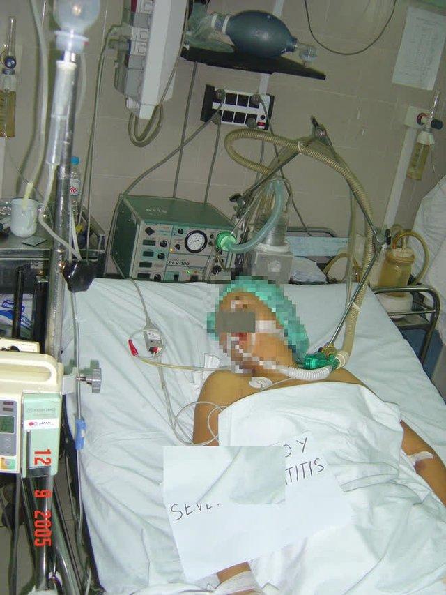 Lan truyền cách tự chữa Covid-19 trên mạng: GĐ Trung tâm chống độc BV Bạch Mai cảnh báo ngộ độc thuốc hạ sốt - Ảnh 1.