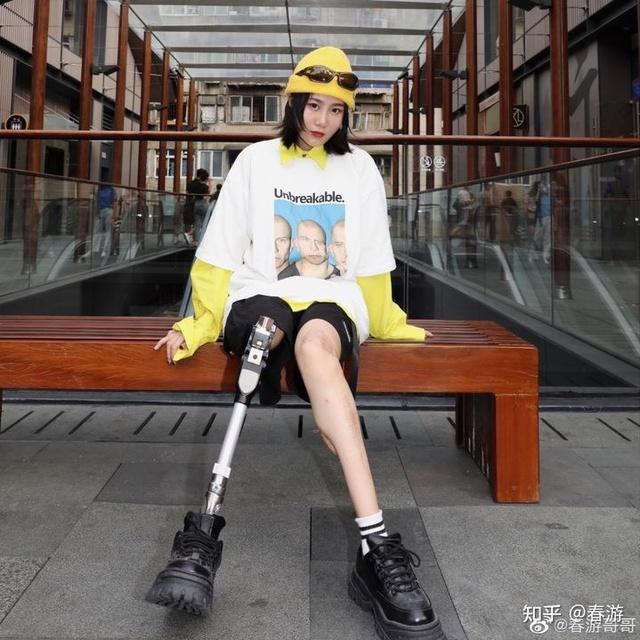 Cô gái sống sót trong trận động đất kinh hoàng, mất chân phải, trải qua 30 cuộc phẫu thuật để giữ mạng: Vượt qua mặc cảm, trở thành nhiếp ảnh gia và truyền cảm hứng cho nhiều người - Ảnh 3.