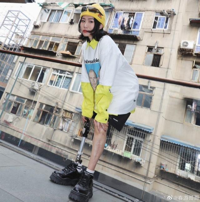 Cô gái sống sót trong trận động đất kinh hoàng, mất chân phải, trải qua 30 cuộc phẫu thuật để giữ mạng: Vượt qua mặc cảm, trở thành nhiếp ảnh gia và truyền cảm hứng cho nhiều người - Ảnh 4.