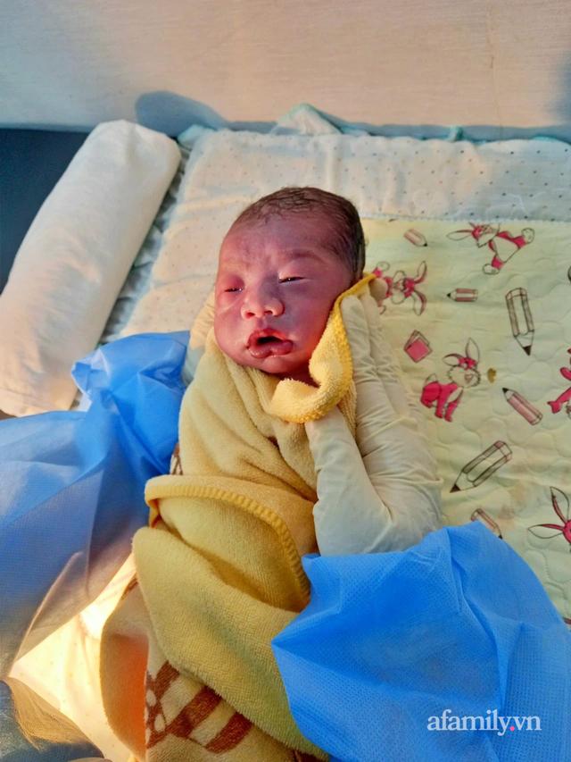 3 bệnh viện cùng phối hợp để cứu hai mẹ con sản phụ 22 tuổi nhiễm COVID-19 nguy kịch - Ảnh 3.