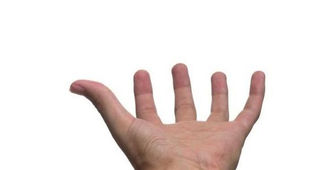 4 biểu hiện trên bàn tay có thể là dấu hiệu quan trọng cảnh báo nguy cơ đột tử  - Ảnh 3.