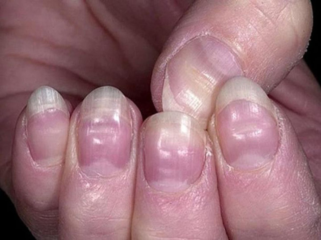 4 biểu hiện trên bàn tay có thể là dấu hiệu quan trọng cảnh báo nguy cơ đột tử  - Ảnh 4.