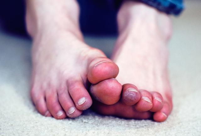 5 triệu chứng ở chân cho thấy cơ thể bạn đang trên đà lão hóa, mắc phải dù chỉ 1 cái cũng đã rất đáng lo - Ảnh 3.