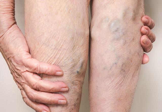 5 triệu chứng ở chân cho thấy cơ thể bạn đang trên đà lão hóa, mắc phải dù chỉ 1 cái cũng đã rất đáng lo - Ảnh 5.