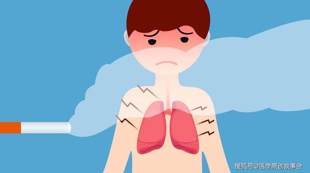 Ngoài hút thuốc lá thì 4 thói quen này sản sinh ra tế bào ung thư phổi: Điều cuối cùng ai cũng làm mỗi ngày mà không biết - Ảnh 1.