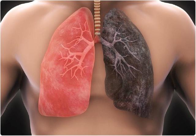 """Bác sĩ nhắc nhở: Nhận thấy 4 điều bất thường này ở tay thì có thể phổi đang """"kiệt quệ"""", nặng hơn có thể dẫn đến ung thư - Ảnh 1."""