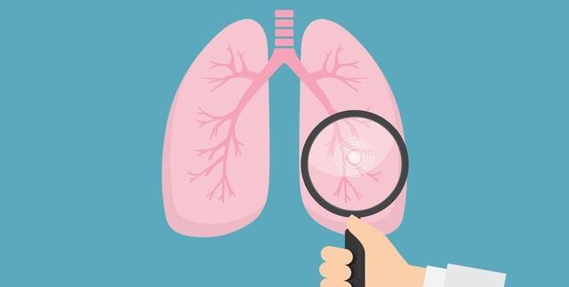 """Bác sĩ nhắc nhở: Nhận thấy 4 điều bất thường này ở tay thì có thể phổi đang """"kiệt quệ"""", nặng hơn có thể dẫn đến ung thư - Ảnh 3."""