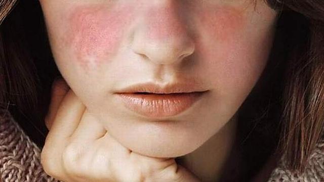 3 dấu hiệu trên làn da cảnh báo đường huyết cao quá mức, cần làm ngay 2 việc để tránh nhiều biến chứng nguy hiểm  - Ảnh 2.