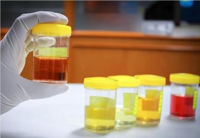 Nước tiểu vào buổi sáng tiết lộ thận tốt có hay không: Hãy đi kiểm tra thận ngay nếu nước tiểu của bạn có 3 đặc điểm bất thường này - Ảnh 2.