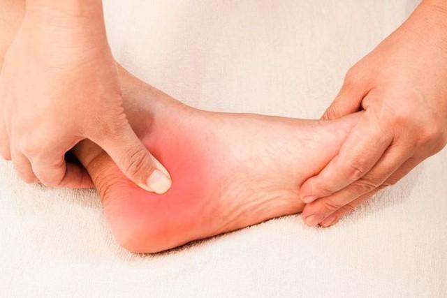 Nhìn bàn chân đoán bệnh: Có 4 điểm bất thường trên bàn chân, cần đi khám thận khẩn cấp  - Ảnh 3.
