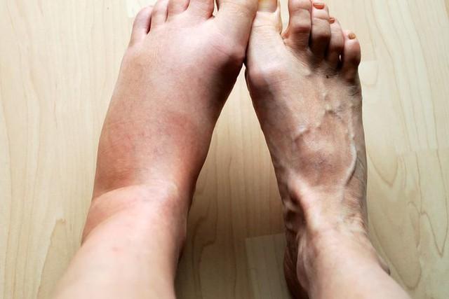Nhìn bàn chân đoán bệnh: Có 4 điểm bất thường trên bàn chân, cần đi khám thận khẩn cấp  - Ảnh 4.