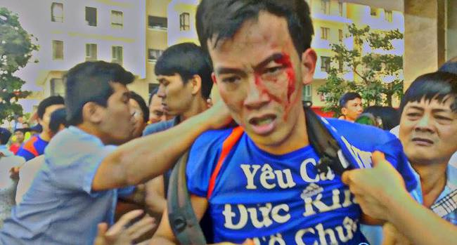 Lại tranh chấp đổ máu tại chung cư ở Sài Gòn