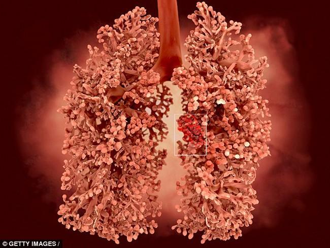 5 năm trước khi ung thư phổi phát bệnh bạn đã có thể biết chỉ nhờ xét nghiệm này