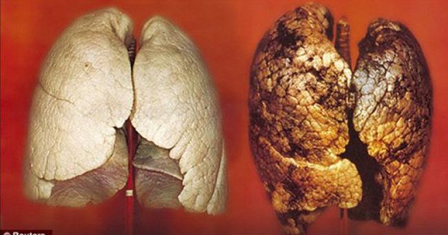Ung thư phổi có tỷ lệ tử vong rất cao: 4 nhóm người cần đặc biệt chú ý đến việc khám phổi