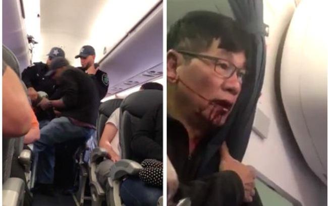 """CEO United Airlines gọi hành khách bị lôi khỏi máy bay kín chỗ là """"kẻ gây rối và hiếu chiến"""""""
