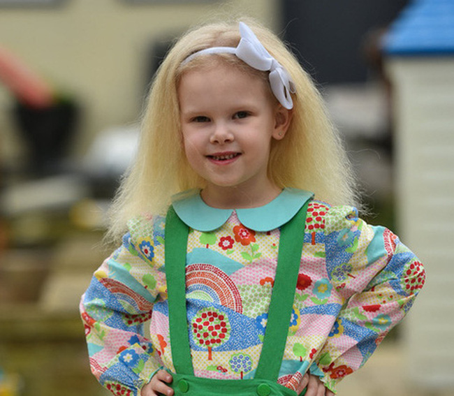 """Bé gái có """"mái tóc bất trị"""" giống hệt nhà bác học Einstein, trên thế giới chỉ 100 người như vậy"""