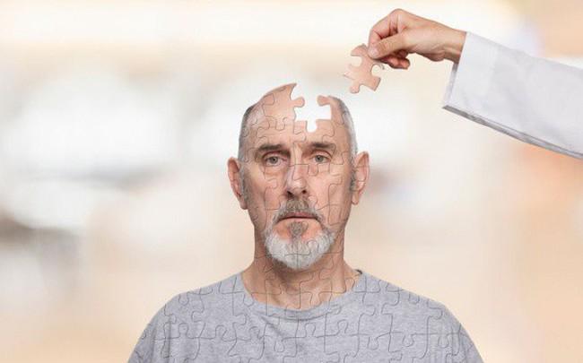 Muốn ngăn ngừa bệnh Alzheimer khi về già, đây là 4 bước giúp bạn tăng cường sức mạnh não bộ dễ dàng mà hiệu quả
