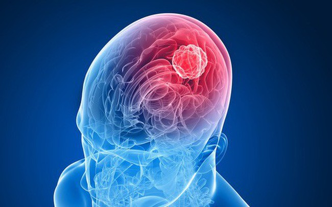 Cẩn thận với những dấu hiệu tố cáo bạn đang có một khối u não