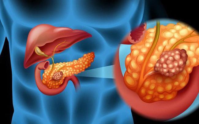 6 dấu hiệu của ung thư tuyến tụy: Căn bệnh cực nguy hiểm vì tỷ lệ