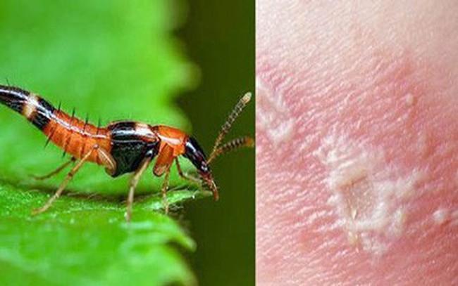"""""""Mùa"""" kiến ba khoang, làm gì để phòng tránh côn trùng này?"""