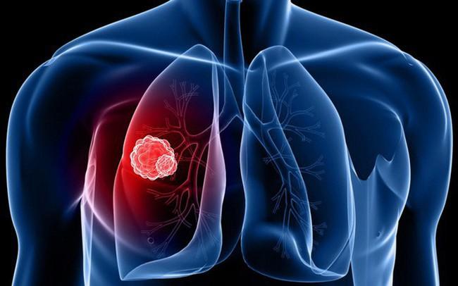 Thông tin ít biết về căn bệnh ung thư khiến người Việt chết nhiều nhất