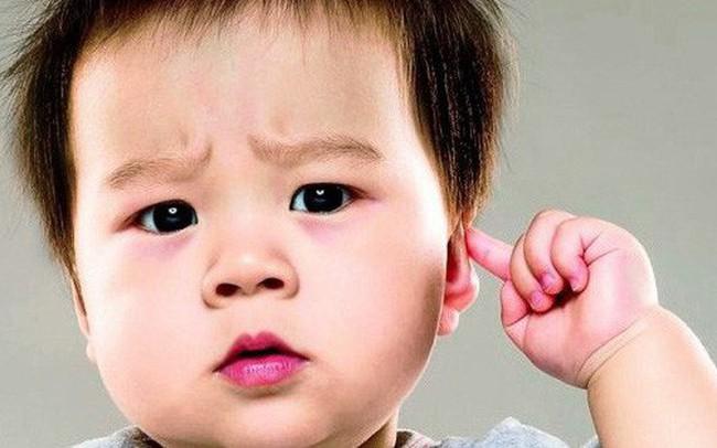 Bé không giật mình khi ngủ: Cẩn thận với căn bệnh bẩm sinh khiến trẻ trở thành tàn tật
