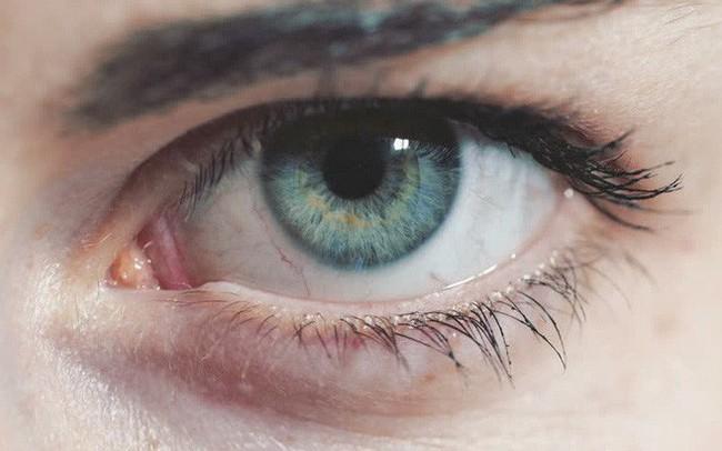 """Đôi mắt đang bị """"tấn công"""" bởi thiết bị công nghệ: 3 cách quan trọng để không làm hỏng mắt"""