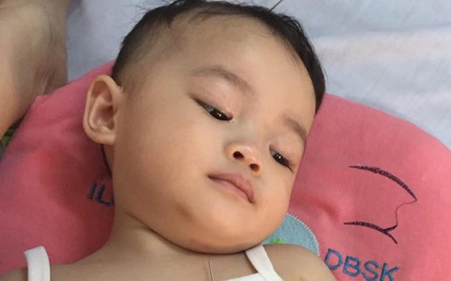 Sốt đúng 1 ngày, bé gái 21 tháng tuổi đã bị viêm màng não, để lại di chứng nặng nề và bài học cảnh tỉnh các mẹ