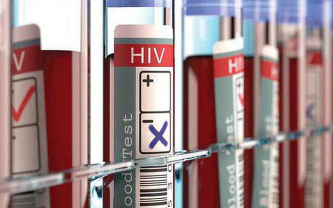 Xuất hiện bệnh nhân thứ 3 trên thế giới được chữa khỏi HIV