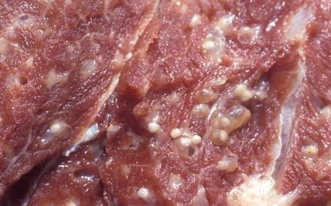 Bệnh sán lợn khiến 400 trẻ mầm non Bắc Ninh hốt hoảng đi xét nghiệm nguy hiểm thế nào?