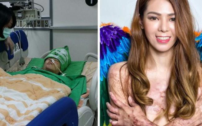 """Cơ thể bỏng 91%, cô gái Đài Loan vẫn tự tin khoe nhan sắc xinh đẹp với biệt danh """"nàng tiên cá trong biển lửa"""""""