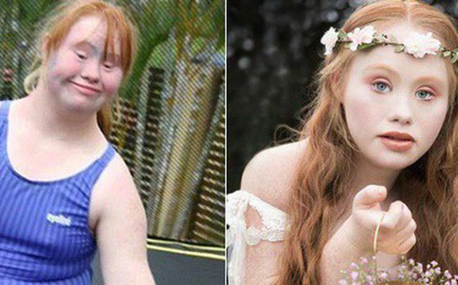 """Người mẫu trẻ mắc bệnh Down từng thay đổi chuẩn mực cái đẹp thế giới 4 năm trước giờ đây đã có bước tiến không ngờ, mơ thành """"thiên thần Victoria's Secret"""""""