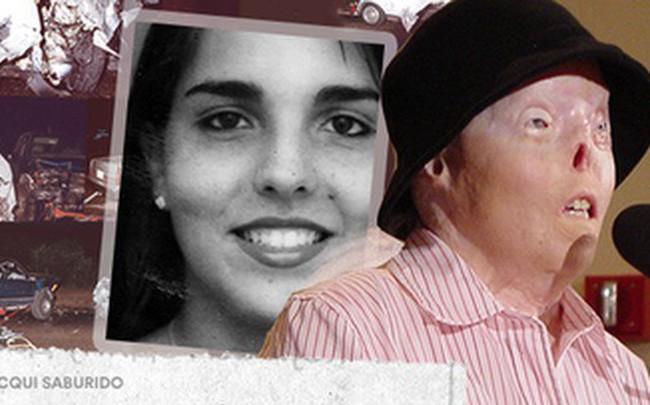 Jacqui Saburido - cô gái mang khuôn mặt biến dạng khủng khiếp vì gã tài xế say rượu, dũng cảm đứng lên truyền cảm hứng sống cho hàng triệu người