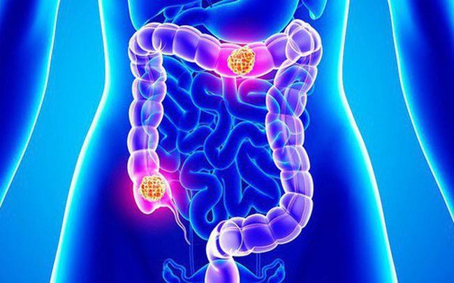 Cẩn thận nguy cơ mắc ung thư ruột rất cao nếu gặp phải những triệu chứng tưởng như vô hại sau