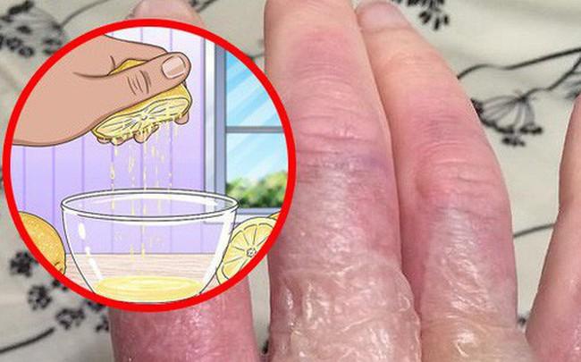 Trời nắng nóng nên cẩn thận với căn bệnh viêm da mà ai cũng có thể gặp phải trong mùa hè
