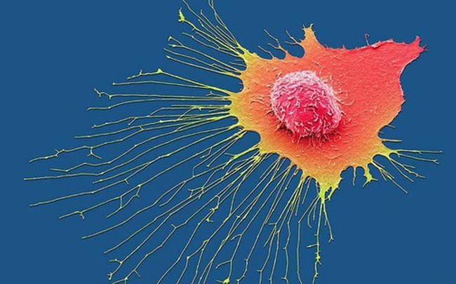 """5 việc mà nhiều người đang làm hàng ngày chính là cách """"nuôi"""" tế bào ung thư lớn lên"""