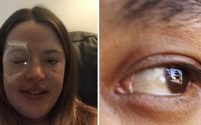 Thấy nhiều đốm trắng nhấp nháy trong phòng ngủ, cô gái người Anh đi khám và không ngờ mình đã bị ung thư mắt