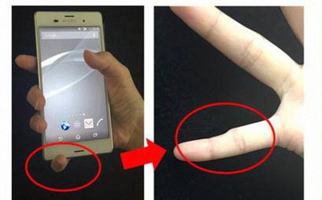 Ngón tay cong vẹo, biến dạng: Tình trạng dễ thấy ở những người dùng điện thoại quá lâu, quá nhiều